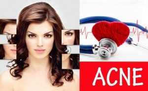 Get the right diet for Acne